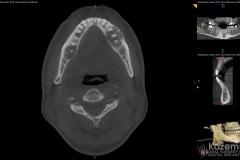 focal cemento-osseous dysplasia kazemi oral surgery05