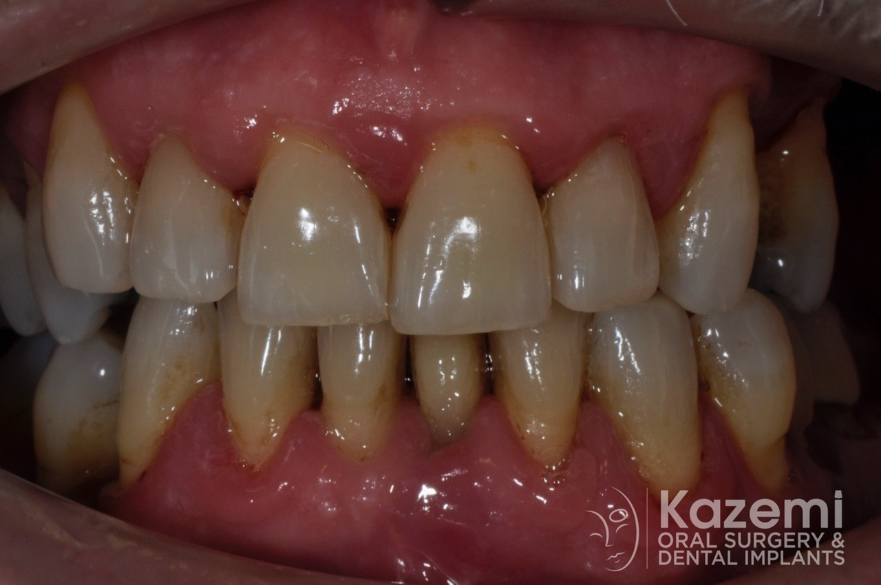 Complete dental implants crown and bridge kazemi oral surgery full arch0000