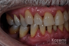 Complete dental implants crown and bridge kazemi oral surgery full arch0001