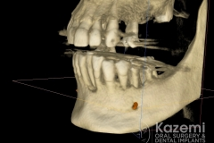 Complete dental implants crown and bridge kazemi oral surgery full arch0004