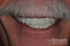 Complete dental implants crown and bridge kazemi oral surgery full arch0005