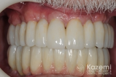 Complete dental implants crown and bridge kazemi oral surgery full arch0006