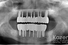 Complete dental implants crown and bridge kazemi oral surgery full arch0007
