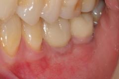 22. implant teeth oral surgeon best dentist bethesda