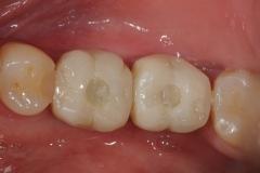 24. screw retained dental implants oral surgeon best dentist bethesda