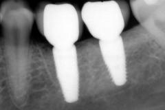25. dental implants crowns xray oral surgeon best dentist bethesda