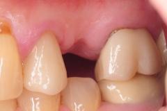 1.-dental-implant-missing-tooth-digital-dentistry-best-dentist-bethedsa-washington-dc-virginia-kazemi-oral-surgery