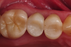 7.-dental-implant-missing-tooth-digital-dentistry-best-dentist-bethedsa-washington-dc-virginia-kazemi-oral-surgery-aesthetic-dentistry