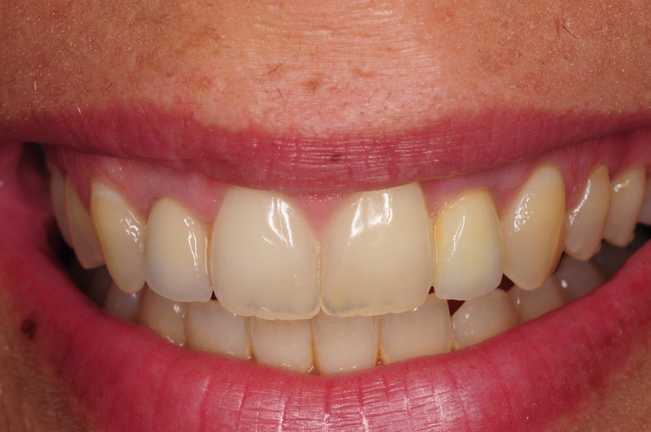 dental-implant-gum-bone-recession-complication-bone-graft-kazemi-oral-surgery-bethesda-dentist-19