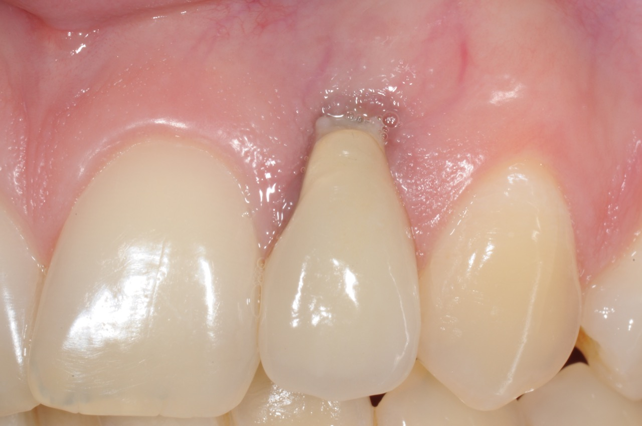 dental-implant-gum-bone-recession-complication-bone-graft-kazemi-oral-surgery-bethesda-dentist-1
