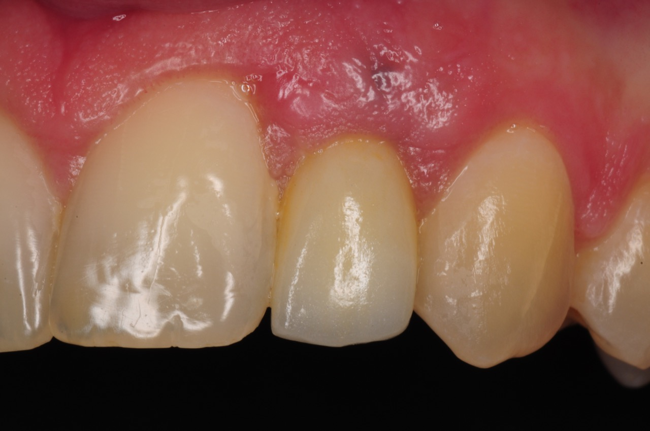 dental-implant-gum-bone-recession-complication-bone-graft-kazemi-oral-surgery-bethesda-dentist-17