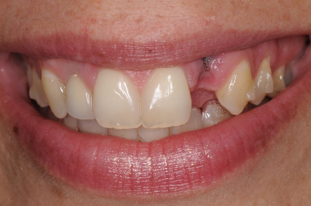 dental-implant-gum-bone-recession-complication-bone-graft-kazemi-oral-surgery-bethesda-dentist-2