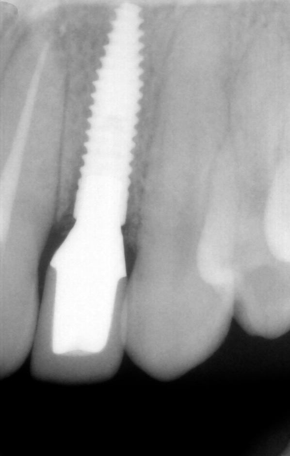 dental-implant-gum-bone-recession-complication-bone-graft-kazemi-oral-surgery-bethesda-dentist-20