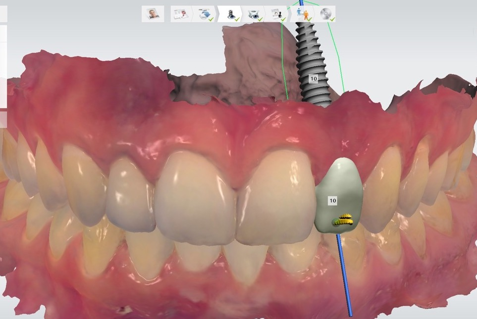 dental-implant-gum-bone-recession-complication-bone-graft-kazemi-oral-surgery-bethesda-dentist-9
