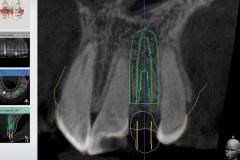 dental-implant-gum-bone-recession-complication-bone-graft-kazemi-oral-surgery-bethesda-dentist-10