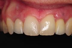 dental-implant-gum-bone-recession-complication-bone-graft-kazemi-oral-surgery-bethesda-dentist-16