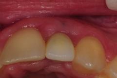 dental-implant-gum-bone-recession-complication-bone-graft-kazemi-oral-surgery-bethesda-dentist-18