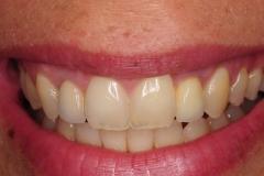 dental-implant-gum-bone-recession-complication-bone-graft-kazemi-oral-surgery-bethesda-dentist-19
