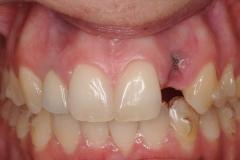 dental-implant-gum-bone-recession-complication-bone-graft-kazemi-oral-surgery-bethesda-dentist-3