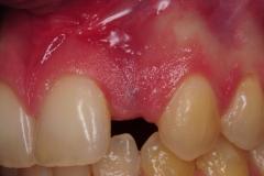 dental-implant-gum-bone-recession-complication-bone-graft-kazemi-oral-surgery-bethesda-dentist-7