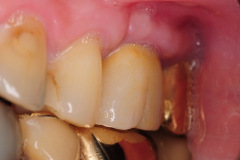 7.-sinus-lift-bone-graft-dental-implants-kazemi-oral-surgery