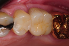 8.-sinus-lift-bone-graft-dental-implants-kazemi-oral-surgery