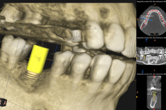 3.-CBCT-Missing-molar-with-thin-bone-and-gum-tissue-planned-for-bone-graft-for-dental-implant-kazemi-oral-surgery-bethesda