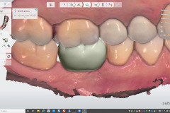 4.-digital-implant-dentistry-for-Missing-molar-with-thin-bone-and-gum-tissue-planned-for-bone-graft-for-dental-implant-kazemi-oral-surgery-bethesda