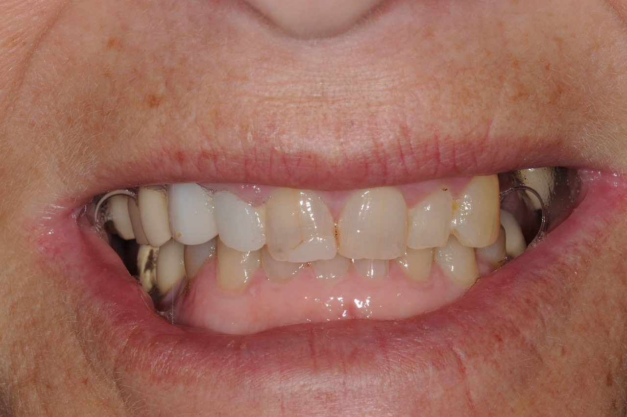 1.-Full-arch-pink-free-dental-implants-smile-design-bethesda-dentist