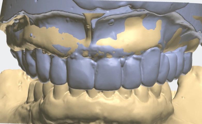 3.-Full-arch-pink-free-dental-implants-smile-design-bethesda-dentist-digital-workflow