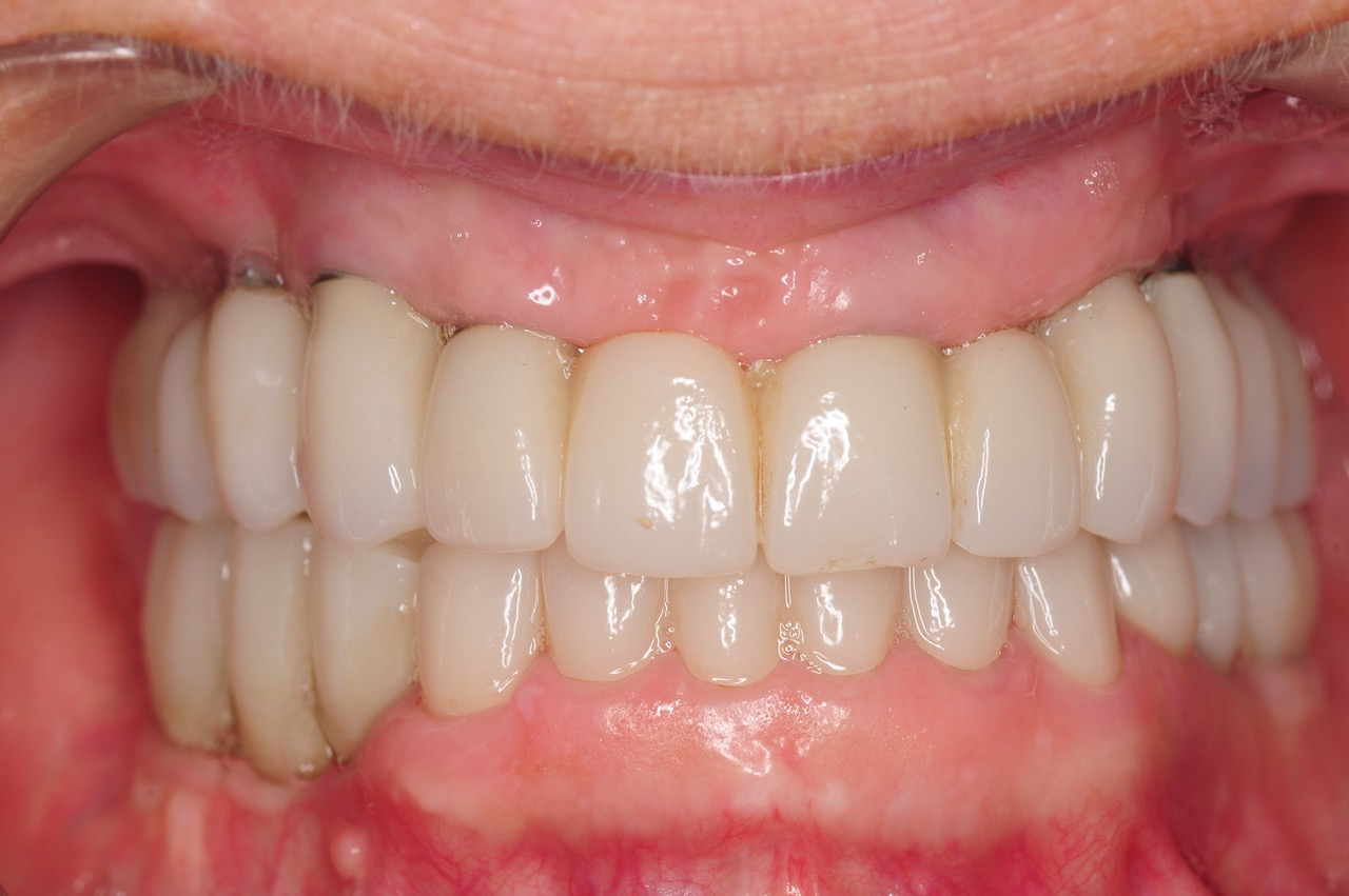 5.-Full-arch-pink-free-dental-implants-smile-design-bethesda-dentist