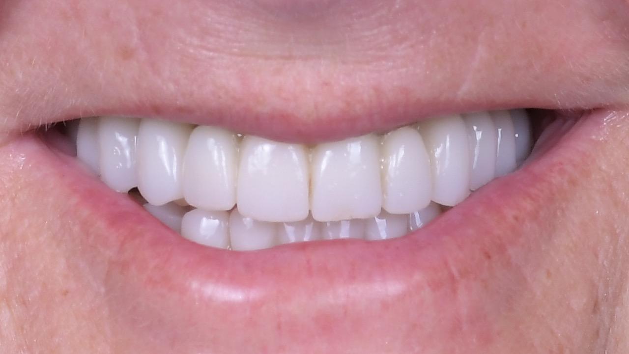 7.-Full-arch-pink-free-dental-implants-smile-design-bethesda-dentist