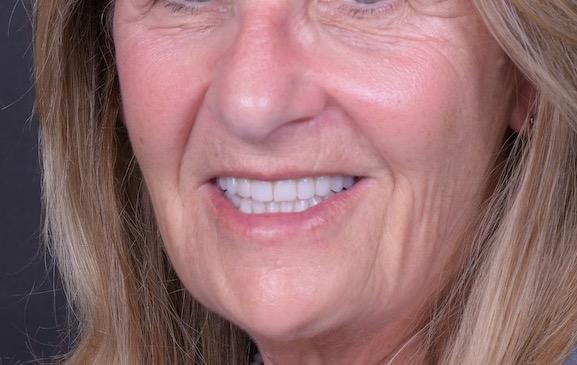 8.-Full-arch-pink-free-dental-implants-smile-design-bethesda-dentist