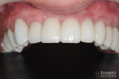 full-arch-multiple-implants-for-bridge-kazemi-oral-surgery-bethesda-washington-dc-10