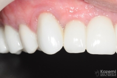 full-arch-multiple-implants-for-bridge-kazemi-oral-surgery-bethesda-washington-dc-8