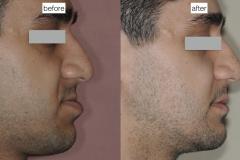 10. jaw surgery orthognathic kazemi oral surgery #10