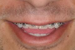 2. jaw surgery orthognathic kazemi oral surgery #2