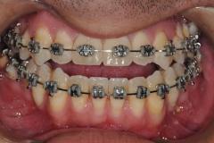 3. jaw surgery orthognathic kazemi oral surgery #3