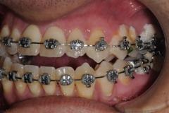 4. jaw surgery orthognathic kazemi oral surgery #4