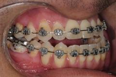 5. jaw surgery orthognathic kazemi oral surgery #5