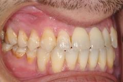 6. jaw surgery orthognathic kazemi oral surgery #6