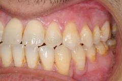7. jaw surgery orthognathic kazemi oral surgery #7