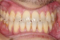 8. jaw surgery orthognathic kazemi oral surgery #8