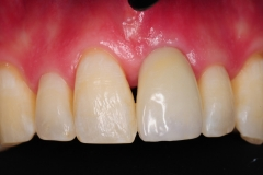 3.-after-gingival-connective-tissue-graft-final-restoration-kazemi-oral-surgery