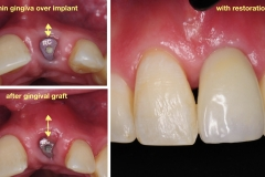 4.-after-gingival-connective-tissue-graft-final-restoration-kazemi-oral-surgery