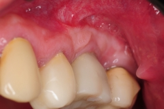 3.-Gum-gingival-graft-for-Inadequate-attached-gingiva-around-final-implant-kazemi-oral-surgery