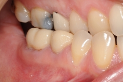 1.-gingival-graft-for-gum-tissue-recession-kazemi-oral-surgey