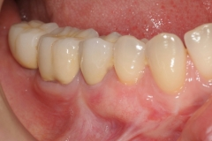 2.-gingival-graft-for-gum-tissue-recession-after-kazemi-oral-surgey