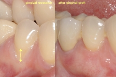 3.-gingival-graft-for-gum-tissue-recession-after-kazemi-oral-surgey