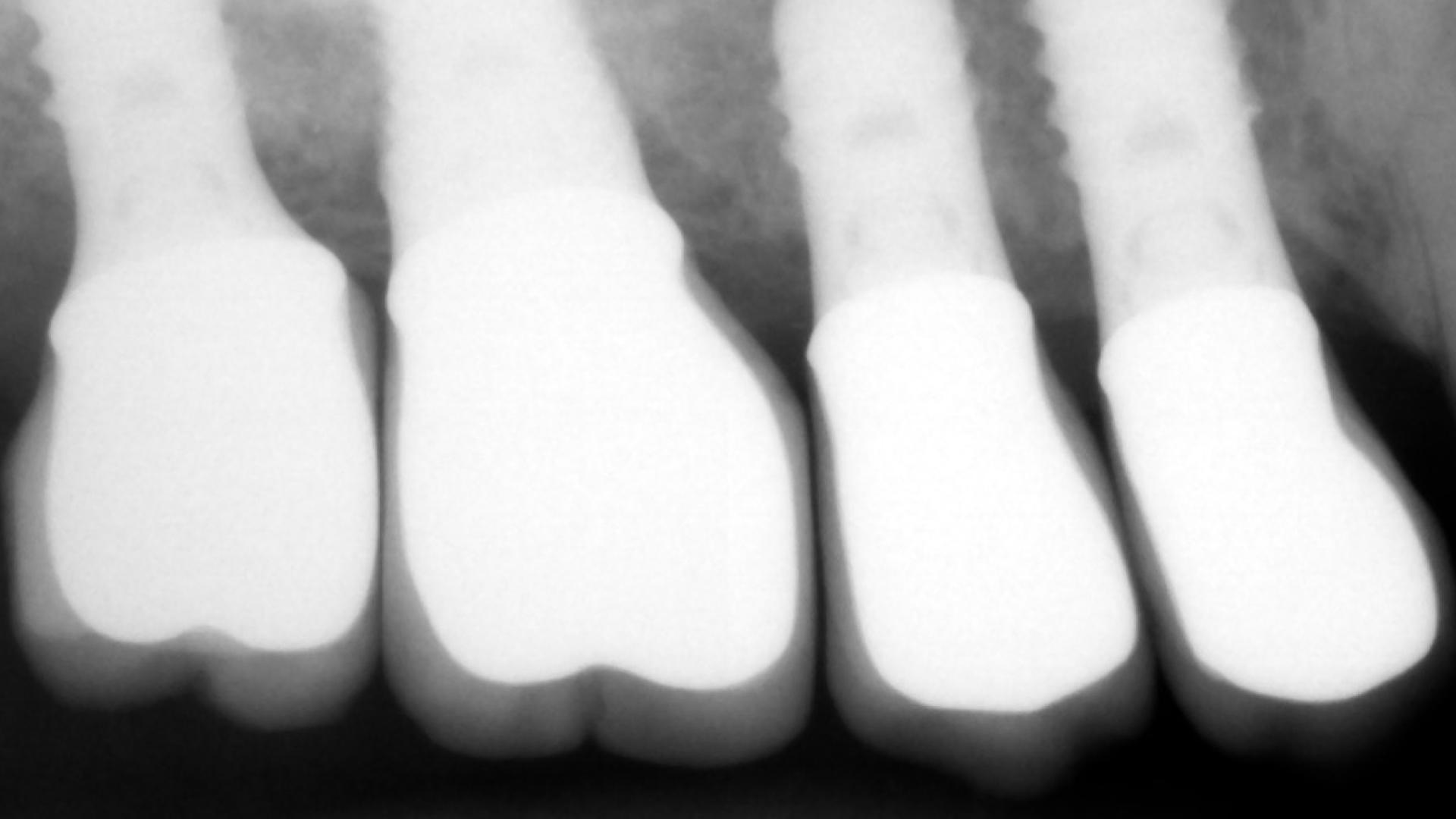 chronic-pain-dental-implant-peri-implantitis-mucositis-airflow-prophylaxis-master-kazemi-oral-surgery-3
